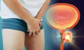 Prostaline - funciona - como tomar - ingredientes